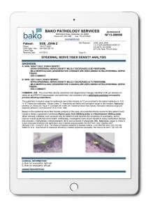 BakoDx ENFD report