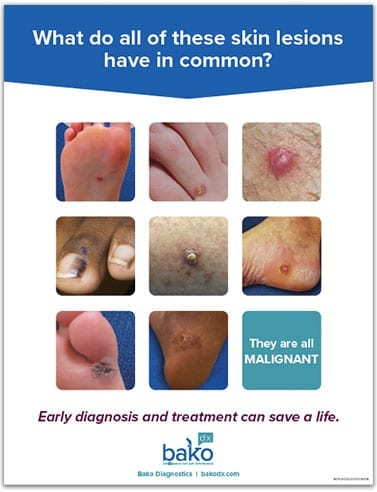 BakoDx Mini Poster: Skin Cancer
